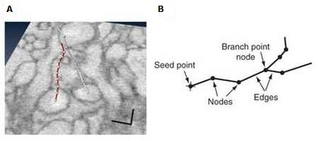 trasování neuronu